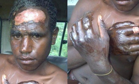papuan-student-burned-by-police