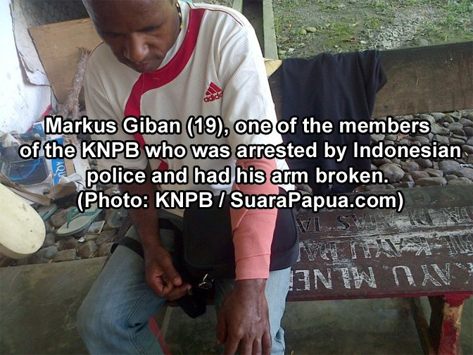 Papuan Activist Tortured by Indonesian Police Until Arm Broken